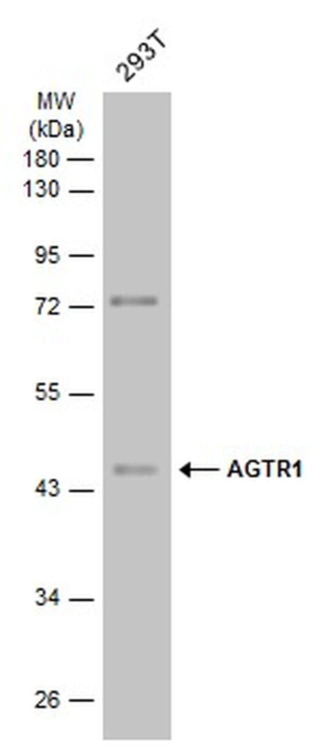AGTR1 Antibody in Western Blot (WB)