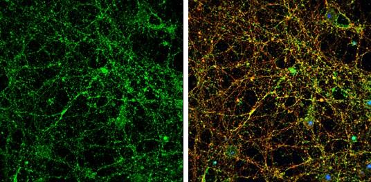 PSD-95 Antibody in Immunofluorescence (IF)