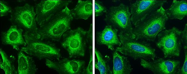 IP3 Receptor 1 Antibody in Immunofluorescence (IF)