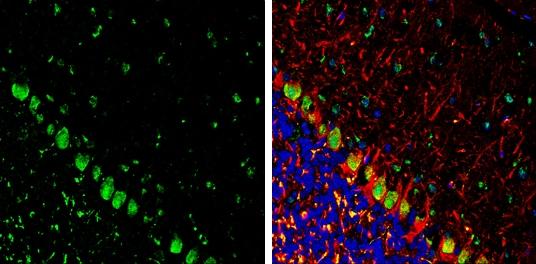 Somatostatin Antibody in Immunohistochemistry (Frozen) (IHC (F))
