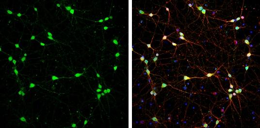 DARPP-32 Antibody in Immunofluorescence (IF)