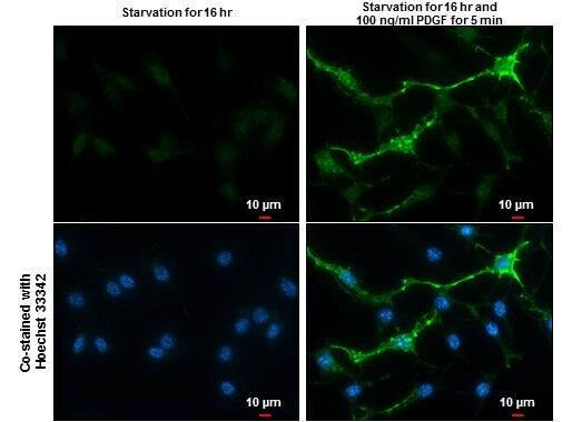 Phospho-PDGFRB (Tyr751) Antibody in Immunofluorescence (IF)