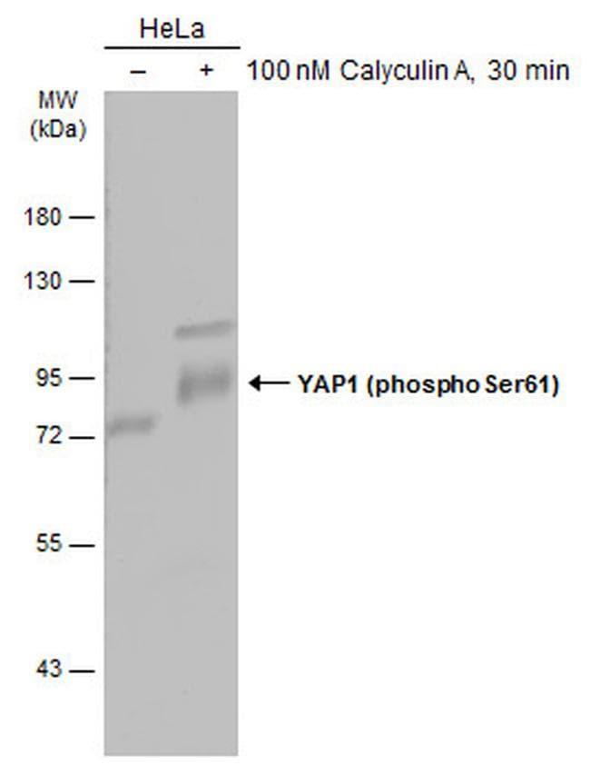 Phospho-YAP1 (Ser61) Antibody in Western Blot (WB)