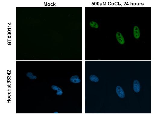 HIF-2 alpha Antibody in Immunocytochemistry (ICC)