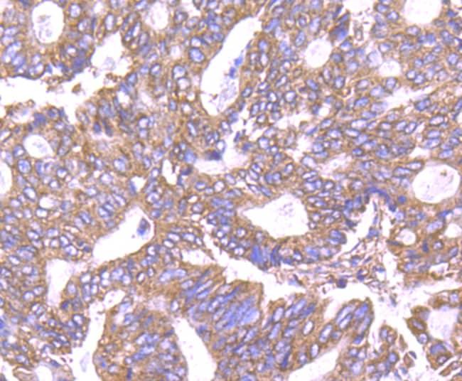 PPM1A Antibody in Immunohistochemistry (Paraffin) (IHC (P))