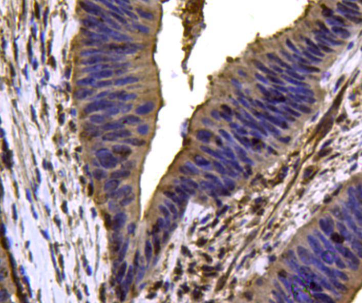 VCP Antibody in Immunohistochemistry (Paraffin) (IHC (P))