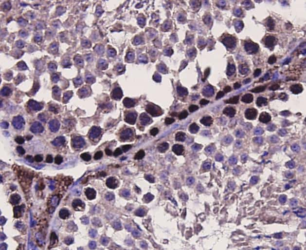MSH6 Antibody in Immunohistochemistry (Paraffin) (IHC (P))