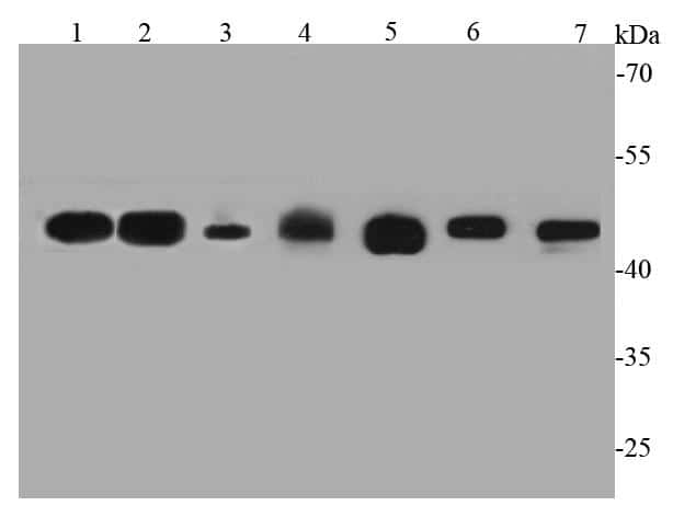 GAP43 Antibody in Western Blot (WB)