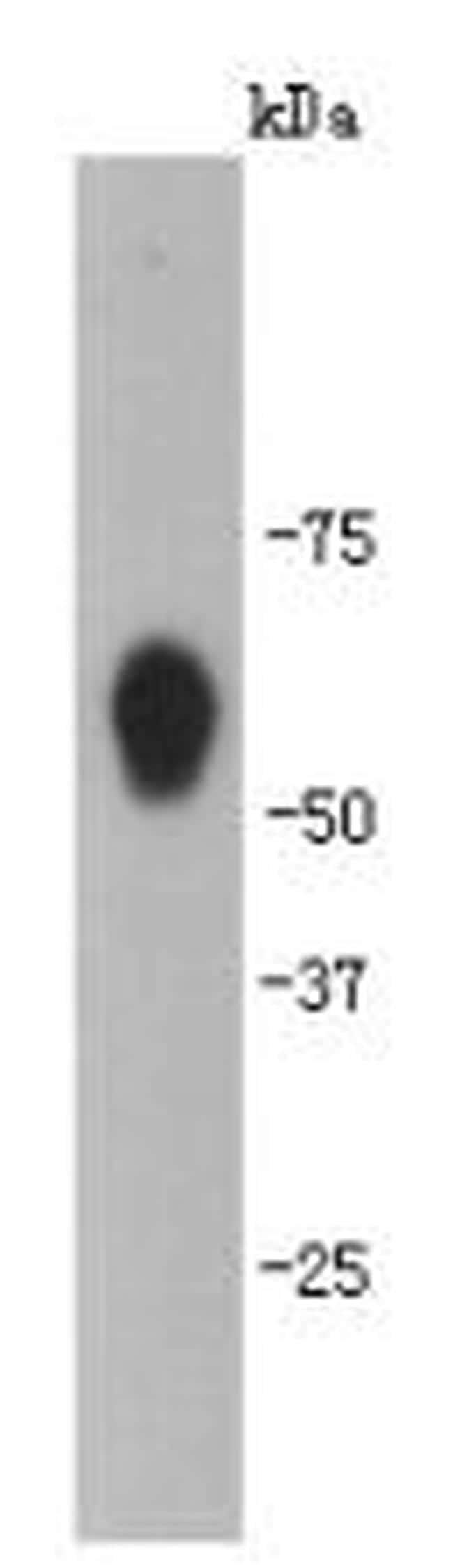 CaMKII delta Antibody in Western Blot (WB)