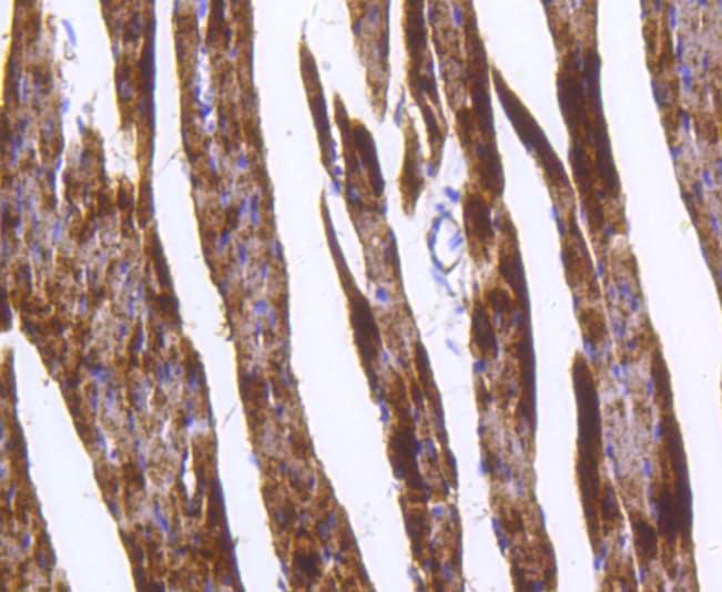 GLUT4 Antibody in Immunohistochemistry (Paraffin) (IHC (P))