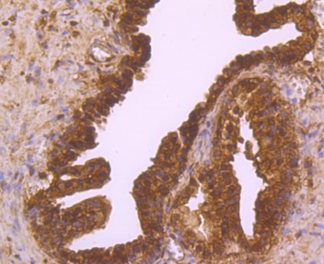 ESD Antibody in Immunohistochemistry (Paraffin) (IHC (P))