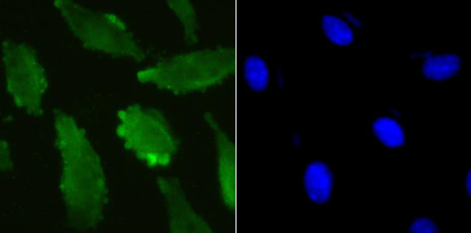 UBA3 Antibody in Immunocytochemistry (ICC)