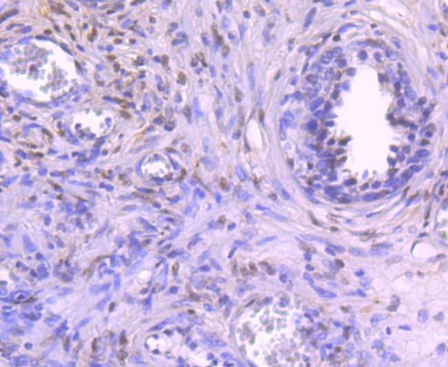 NFIB Antibody in Immunohistochemistry (Paraffin) (IHC (P))