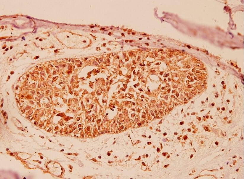 DJ-1 Antibody in Immunohistochemistry (Paraffin) (IHC (P))