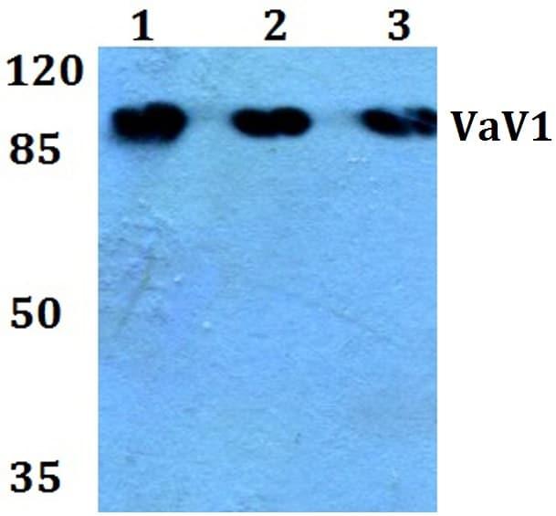 VAV1 Antibody in Western Blot (WB)