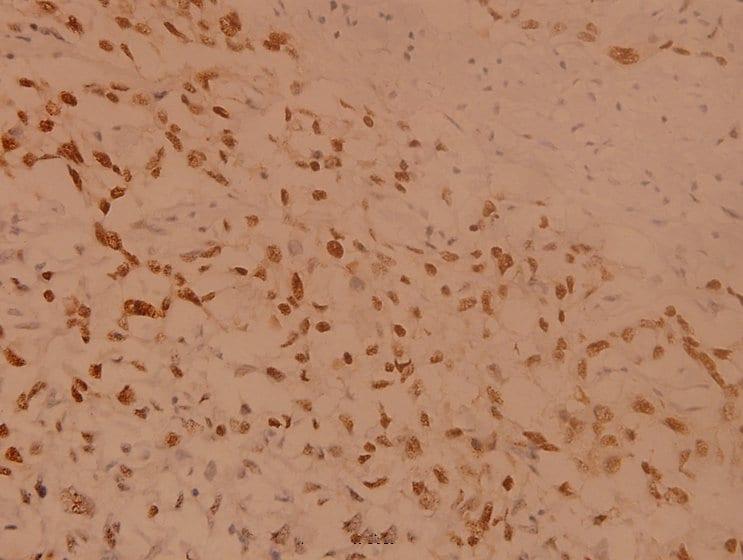 RSK1 Antibody in Immunohistochemistry (Paraffin) (IHC (P))