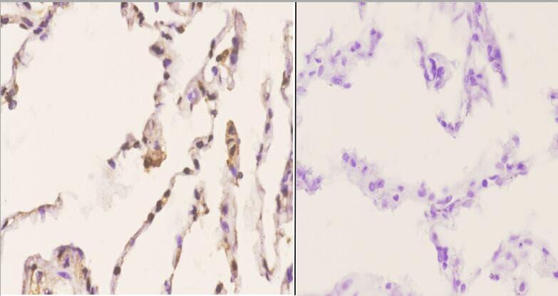 beta Arrestin 1 Antibody in Immunohistochemistry (Paraffin) (IHC (P))