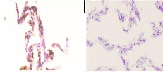 NBS1 Antibody in Immunohistochemistry (Paraffin) (IHC (P))