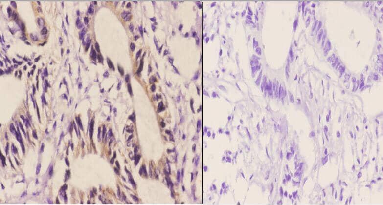 AIF Antibody in Immunohistochemistry (Paraffin) (IHC (P))