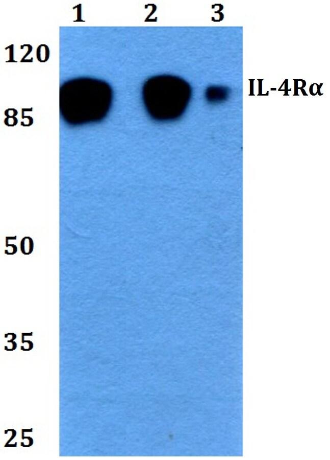 IL4R Antibody in Western Blot (WB)