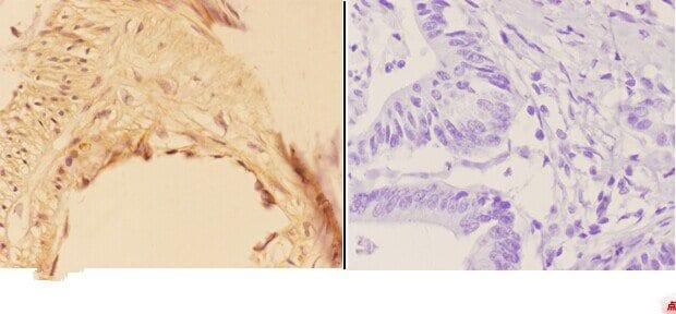 AKR1B1 Antibody in Immunohistochemistry (Paraffin) (IHC (P))