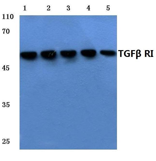 TGFBR1 Antibody in Western Blot (WB)