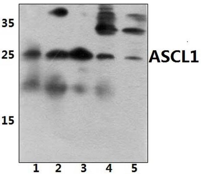 ASCL1 Antibody in Western Blot (WB)