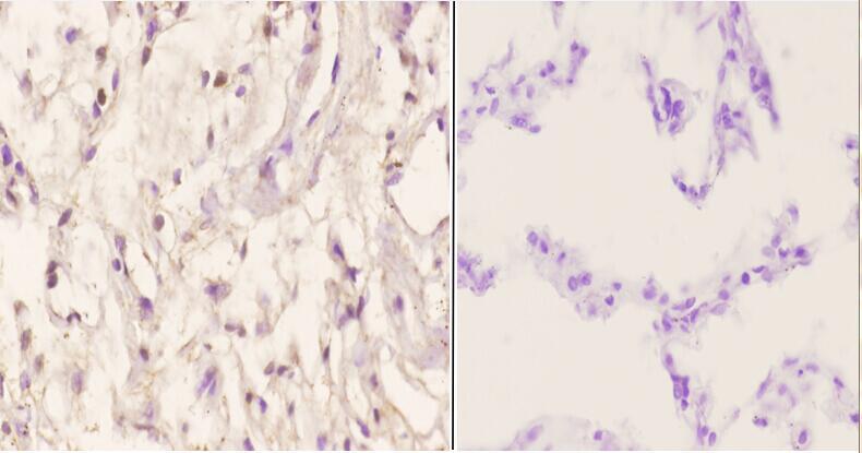 Menin Antibody in Immunohistochemistry (Paraffin) (IHC (P))