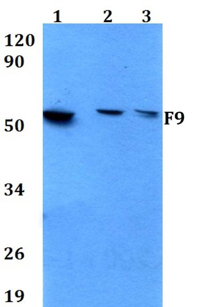 Factor IX Antibody in Western Blot (WB)