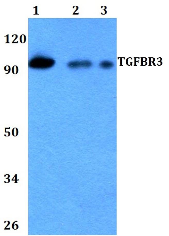 TGFBR3 Antibody in Western Blot (WB)