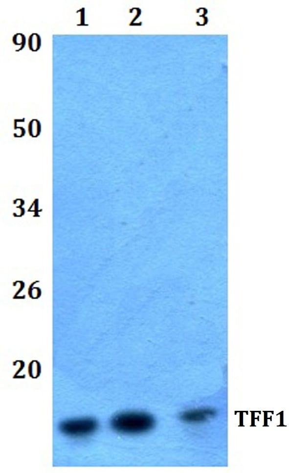 TFF1 Antibody in Western Blot (WB)