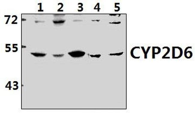 CYP2D6 Antibody in Western Blot (WB)