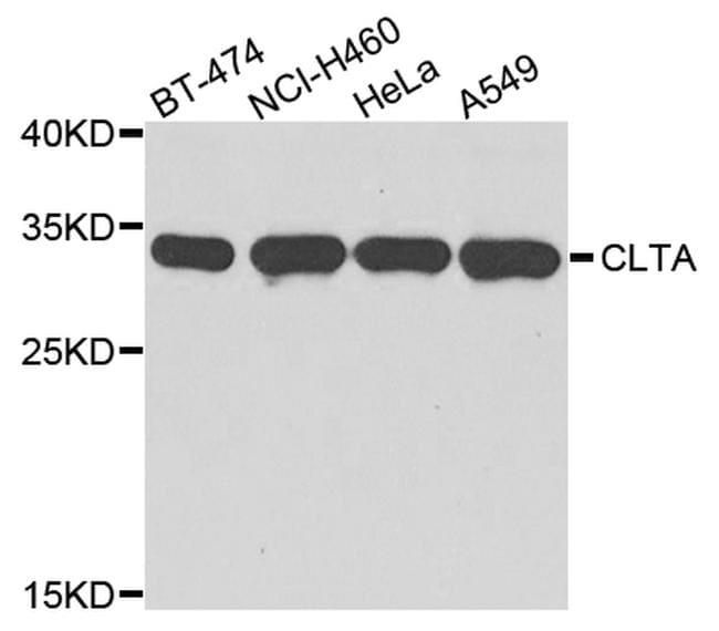 Clathrin Light Chain Antibody in Western Blot (WB)