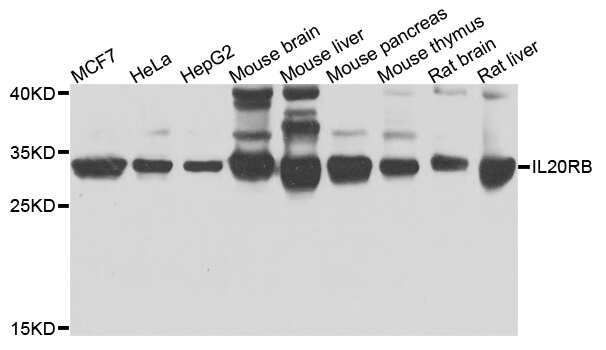 IL20RB Antibody in Western Blot (WB)