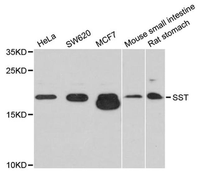 Somatostatin Antibody in Western Blot (WB)
