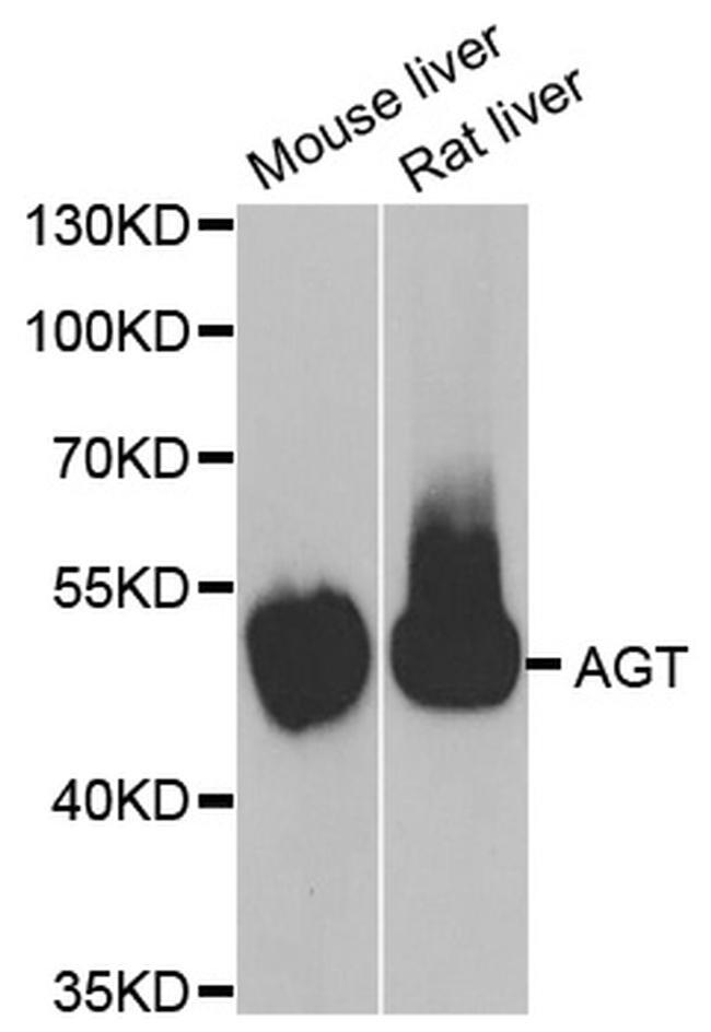 Angiotensin Antibody in Western Blot (WB)