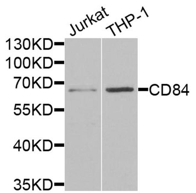 CD84 Antibody in Western Blot (WB)