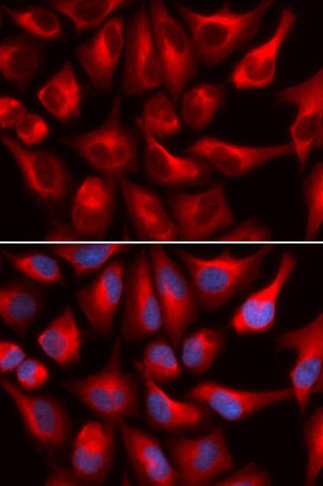 DDX3 Antibody in Immunofluorescence (IF)