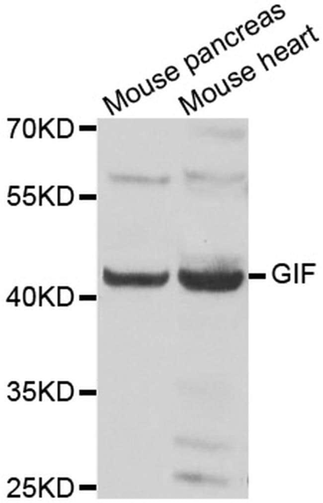 GIF Antibody in Western Blot (WB)