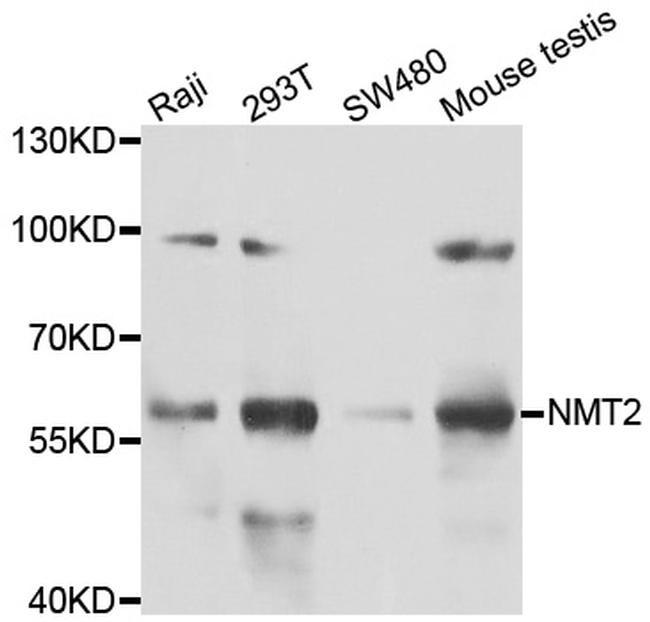 NMT2 Antibody in Western Blot (WB)