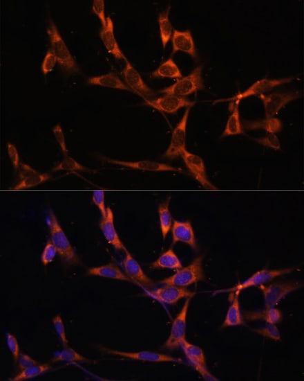 Caspase 8 Antibody in Immunocytochemistry (ICC)