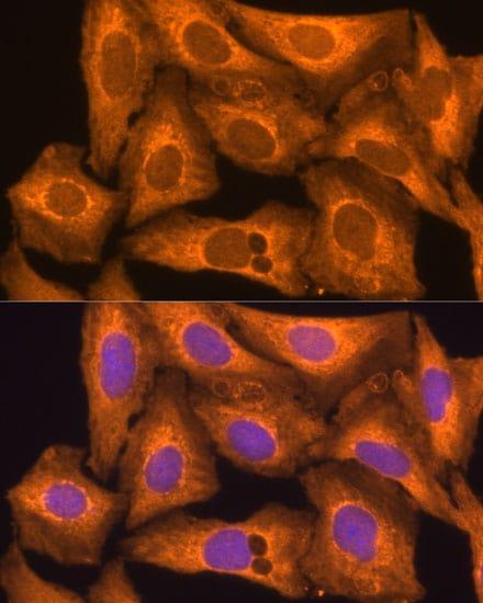 Caspase 12 Antibody in Immunocytochemistry (ICC)