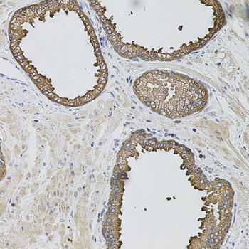 Caspase 12 Antibody in Immunohistochemistry (IHC)