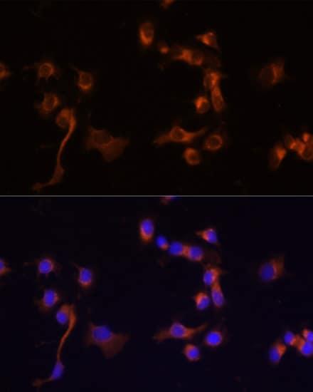 c-Abl Antibody in Immunocytochemistry (ICC)