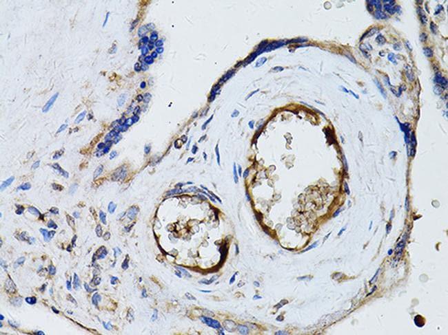 RyR2 Antibody in Immunohistochemistry (Paraffin) (IHC (P))