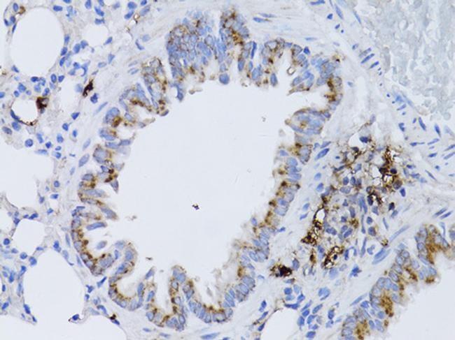 RARA Antibody in Immunohistochemistry (Paraffin) (IHC (P))