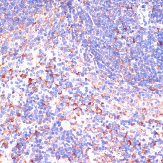 VHL Antibody in Immunohistochemistry (IHC)
