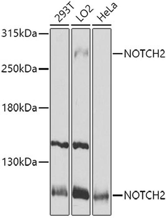 NOTCH2 Antibody in Western Blot (WB)