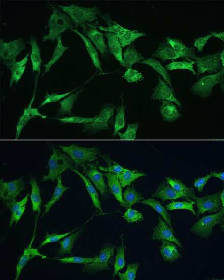 Ezrin Antibody in Immunocytochemistry (ICC)