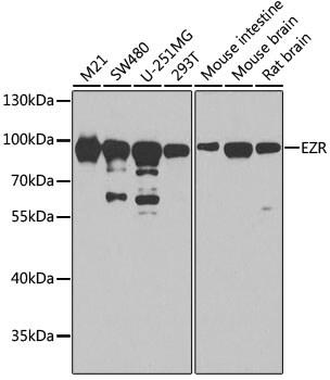 Ezrin Antibody in Western Blot (WB)